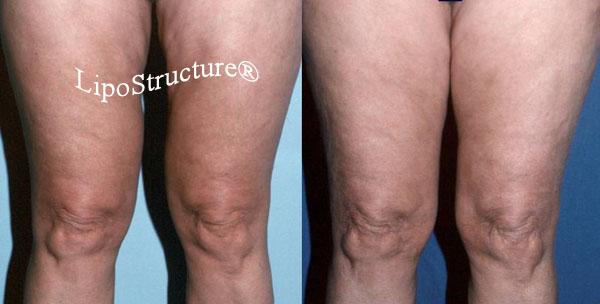 Inner thigh liposuction deformity