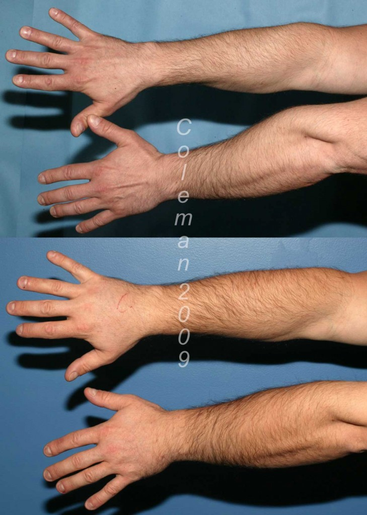 Back of forearm and hands before (above) & 20 months after (below) fat grafting.
