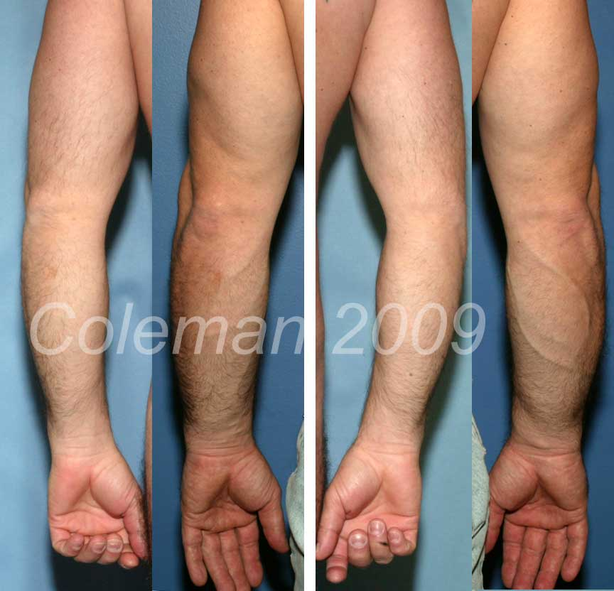 Undersurface of forearm before (a,c) and 20 months after (b,d) one session of Coleman fat grafting