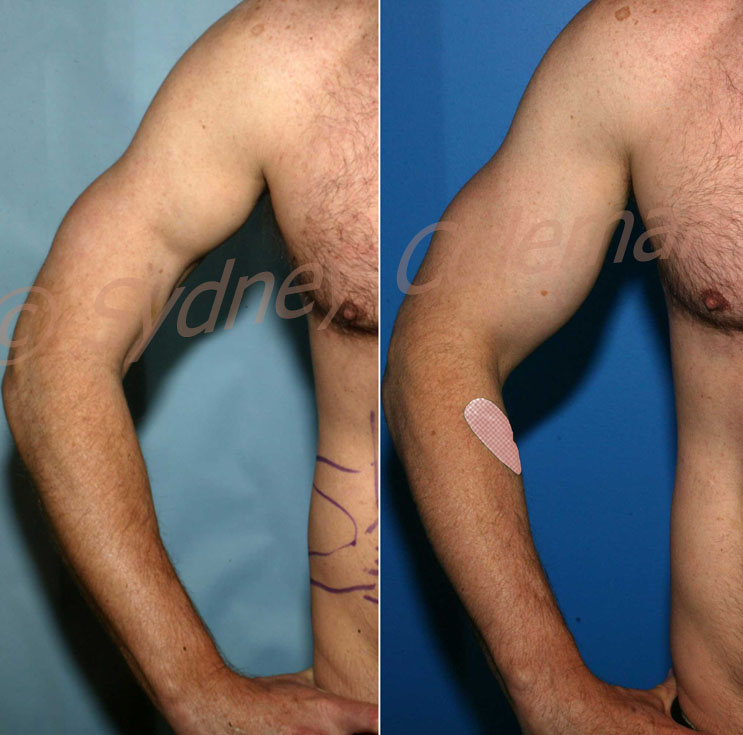 treatment of biceps muscle tear with coleman fat grafting
