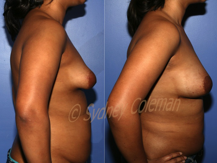 Tubular Breast Correction