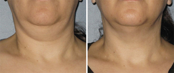 3 months after one Ultherapy treatment to the Neck Photo courtesy of Ulthera