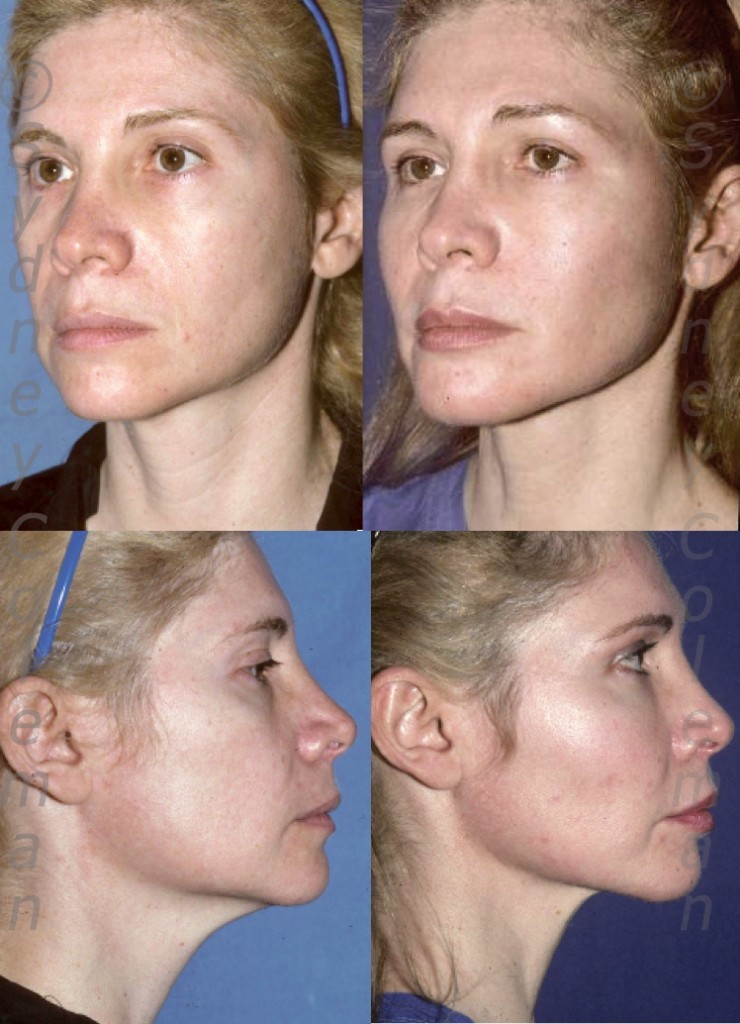 Five years after placement of fat into her forehead, temples, upper eyelids, lower eyelids, cheeks, lips, chin and jawline. Patient had a remarkably long-lasting rejuvenation with small amounts of fat into most areas of her face.