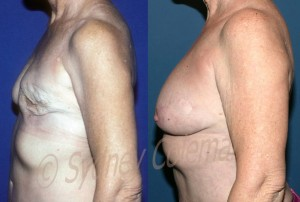 6 years and 5 months after the last of two fat graftings procedures to the breast after removal of breast implants