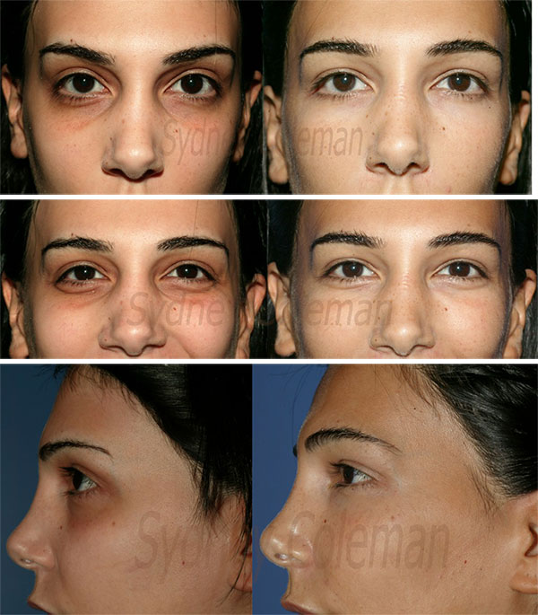 Lower Eyelids and Cheeks - New York, NY | Lipostructure ...