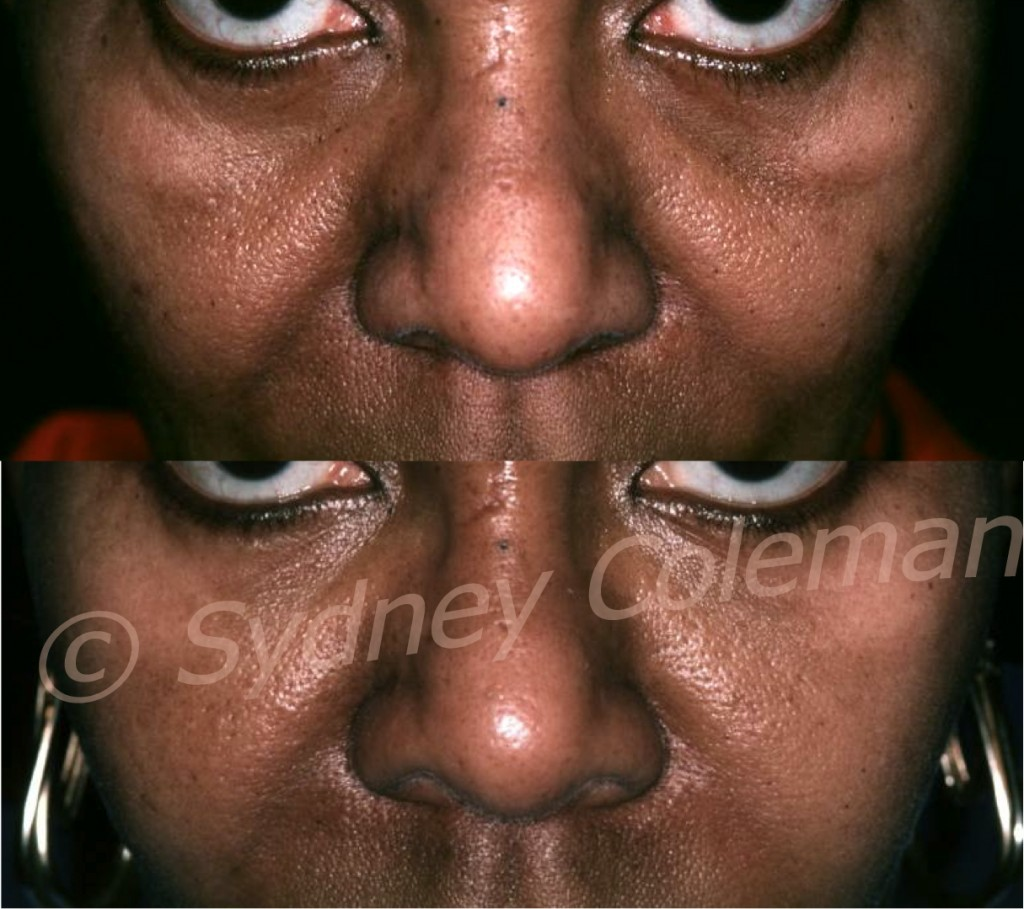 Patient before (above) with deep tear troughs, dark pigmentation and deep pores after a lower eyelid blepharoplasty. 14months after one fat grafting, her lower eyelids are lightened with even pigmentation; smoother skin and remarkably smaller pores.