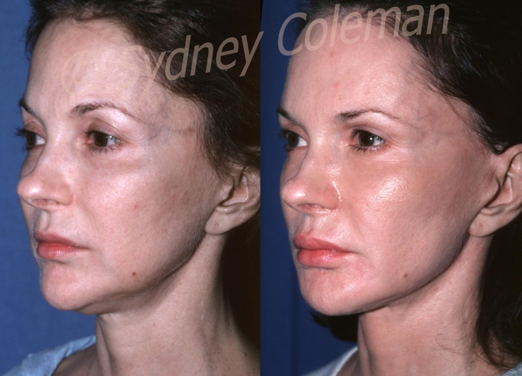 This patient returns three years and six months after one fat grafting procedure with placement of fat over almost every area of her face: her forehead, temples, upper eyelids, lower eyelids, cheeks, jawline, chin and lips. Please observe the remarkable improvement in the quality of the skin: color, pigmentation and wrinkling have all improved.