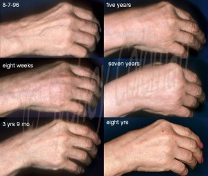 8 years after one fat grafting to the back of the hand. Please note in the progression that the hand appears to gradually improve over time, so that not only does the skin look great at 3 to 5 years, but it appears to continue to improve between 5 and 8 years