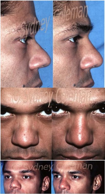 30 year old presented with a large tip, made more obvious by inadequate size of his upper nose. Before (left) and 15 months after one session of fat grafting to the upper nose. On the profile view, the distance between his eyelashes and his nose is remarkably greater. Just the addition of this subtle amount made him appear much calmer and handsome. No other procedures were performed.